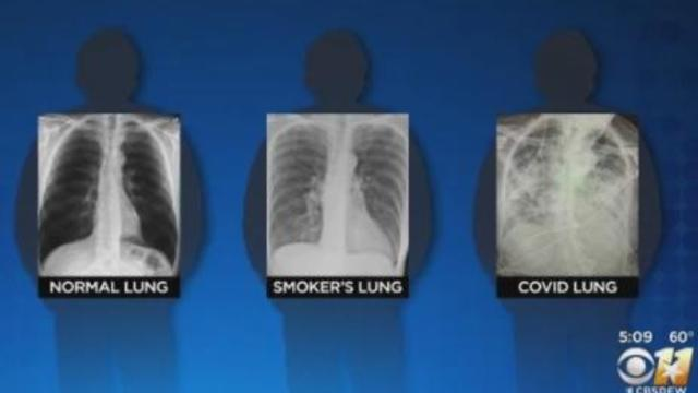 normal-smokers-covid-chest-x-rays.jpg