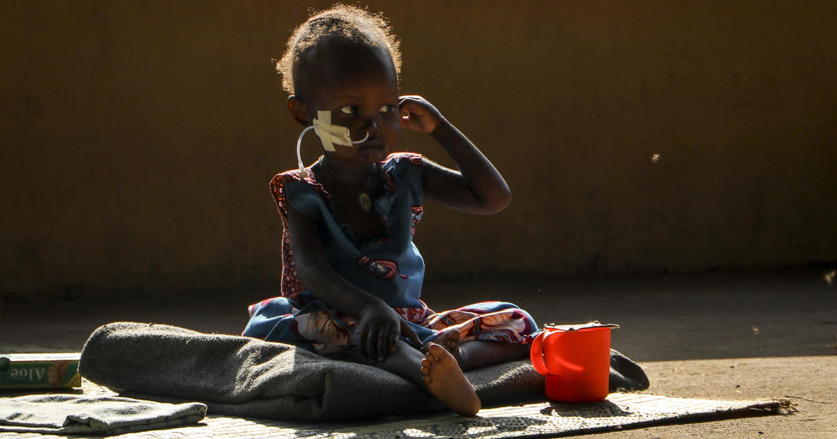 Image Global hunger crisis hit five year high in 2020, new U.N. report says