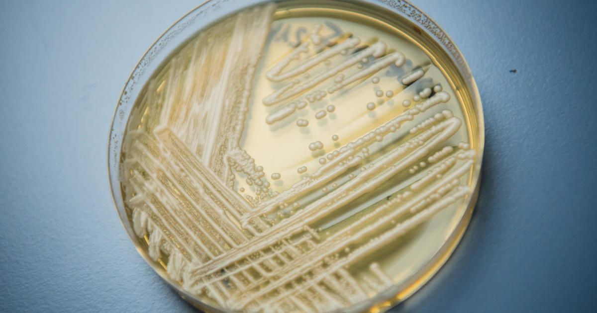 Outbreaks of a drug-resistant superbug fungus spread in two U.S. cities, CDC reports