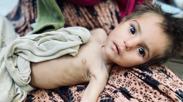 afghanistan-starving-child.jpg